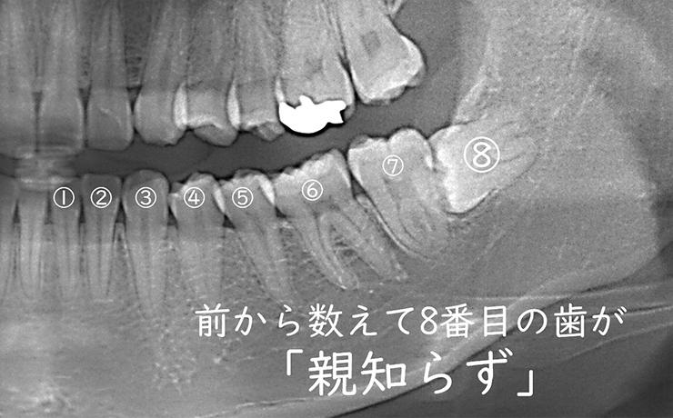 前から数えて8番目の歯が「親知らず」